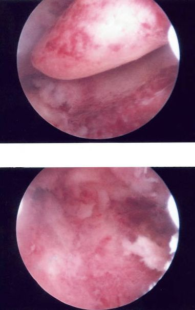 Uterine Polyp Removal before-and-after